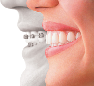Invisalign in Lane Cove