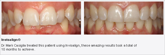 Lane Cove Invisalign Treatment