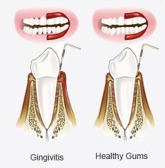 Periodontal Disease ( Gum Disease)