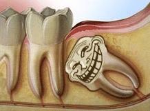 the_oral_appendix